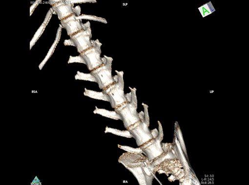 3D-spine CT Image